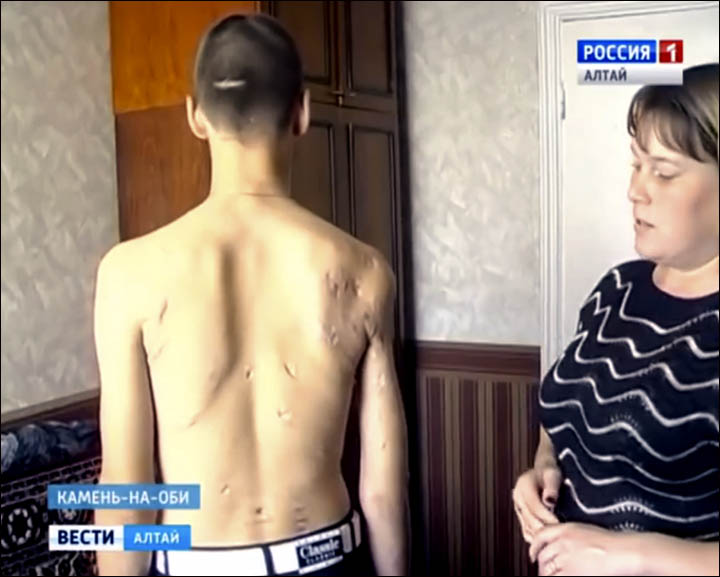 Boy attacked on Sakhalin