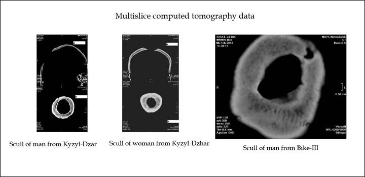 Results of multislice tomography