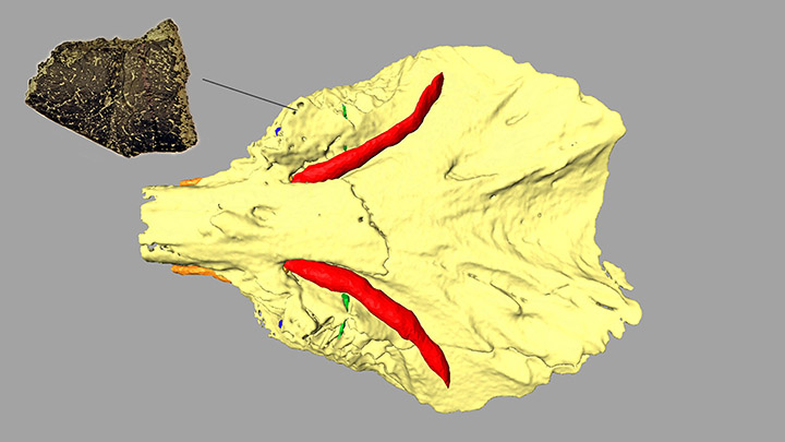 3D reconstruction of the skull