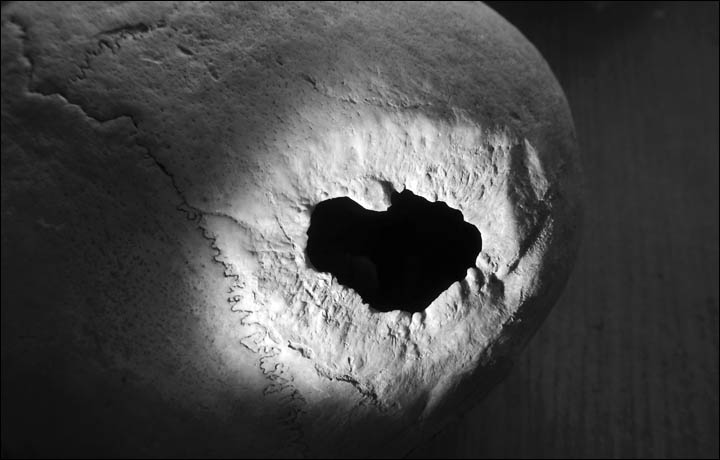 General view of the tracks of the trepanation on the male scull from Bike-III. Picture: Aleksei Krivoshapkin